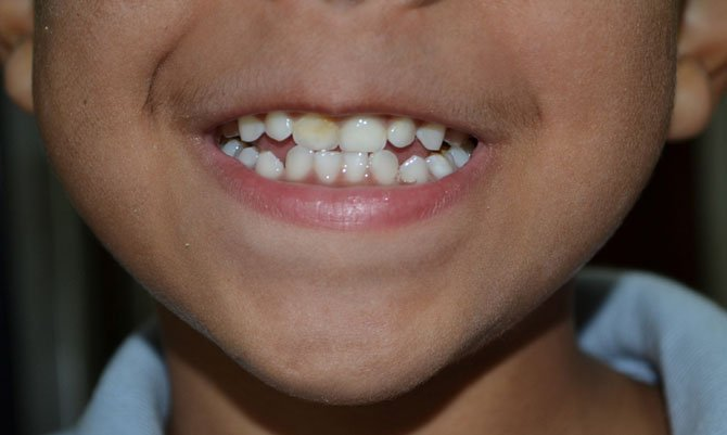 The American Academy of Pediatric Dentistry recommends that children wait until after they've received all of their permanent teeth before undergoing a cosmetic dental procedure.