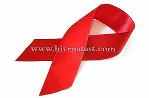HIV RNA TEST USA